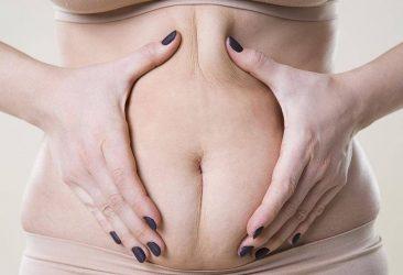 10 trucos para prevenir la celulitis durante el embarazo